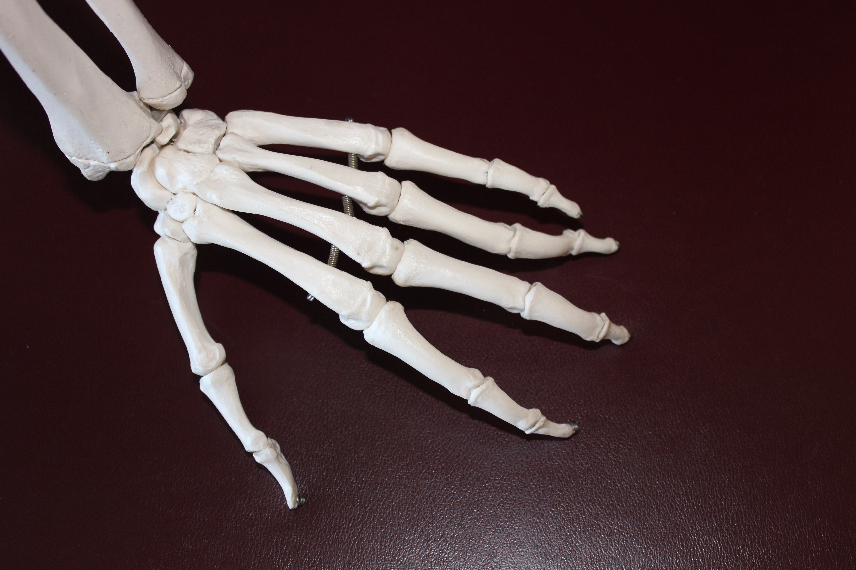 There Are A Few Simple Things You Can Do To Alleviate Arthritis Pain