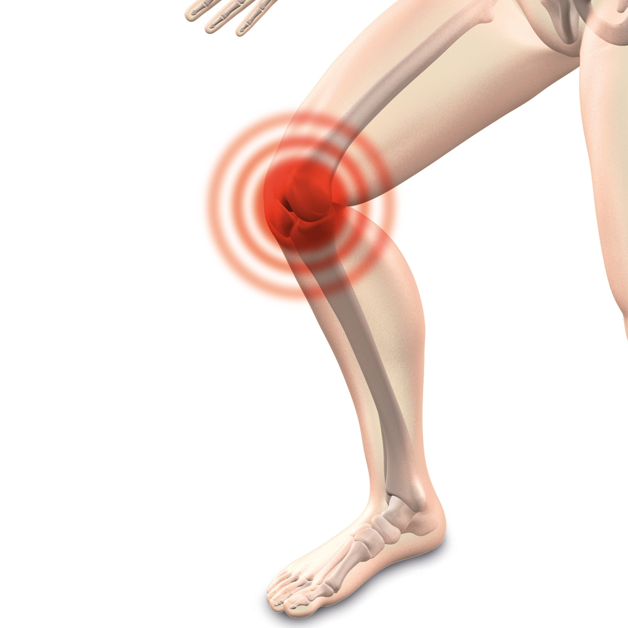 Anti Arthritis Solution: Ease The Pain And Ward Off Those Creaky Joints